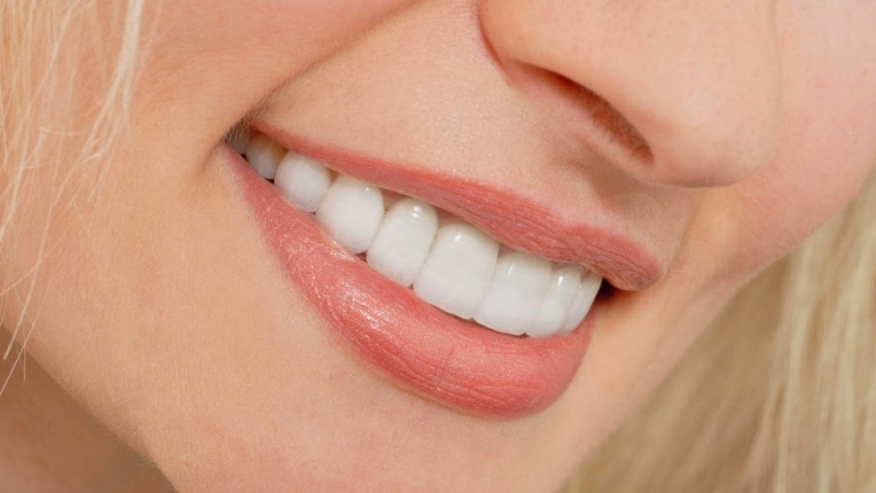 Why you should consider getting Hollywood smile treatment